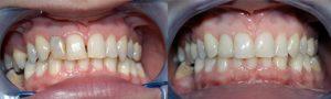 Servizi Odontoiatrici all'estero